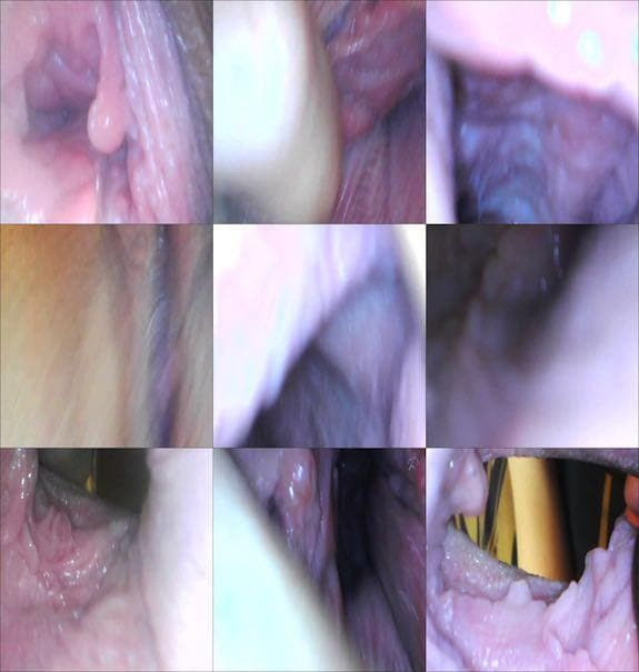 Milly17 - endoscope play part 1